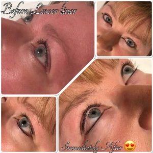 Permanent Eyeliner Immediately After