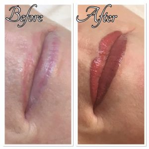 Permanent Lip Treatment Before and After